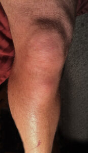 Knee pain can be fixed with orthotics